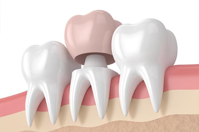 Couronne dentaire Draveil