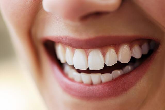 Facette dentaire draveil