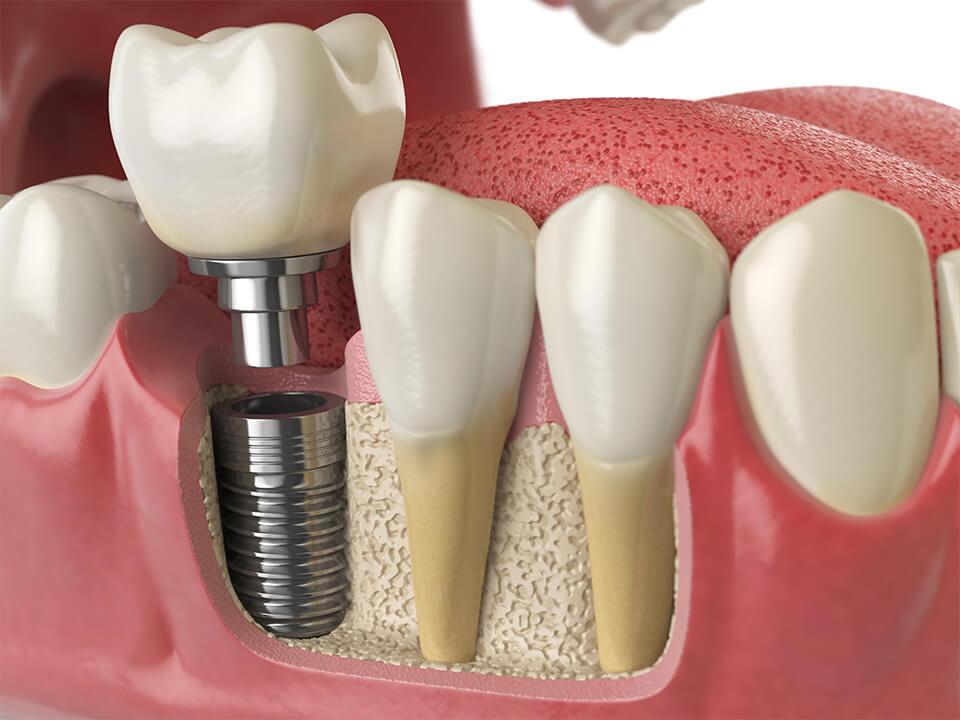 Implantologie dentaire Draveil