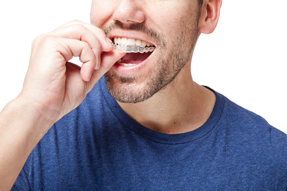 Orthodontie invisible Draveil