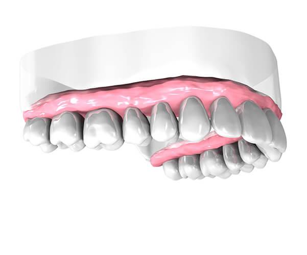Implant dentaire Draveil