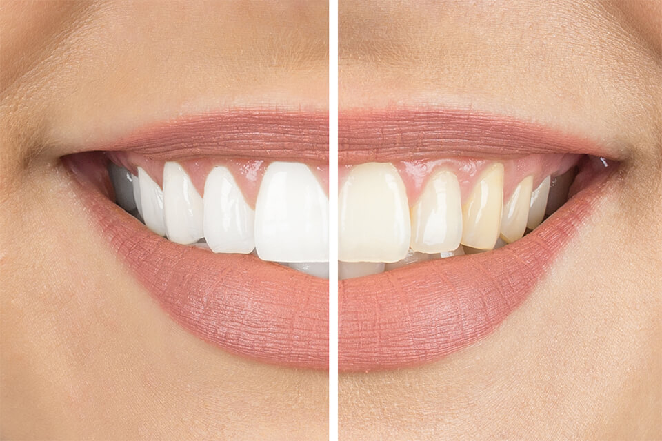 blanchimment dentaire draveil
